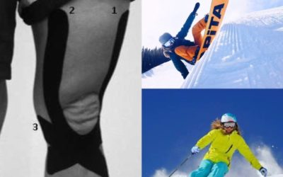 Does your balance get worse when you are fatigued from skiing?  Kinesiology tape might help you on the slopes this year.